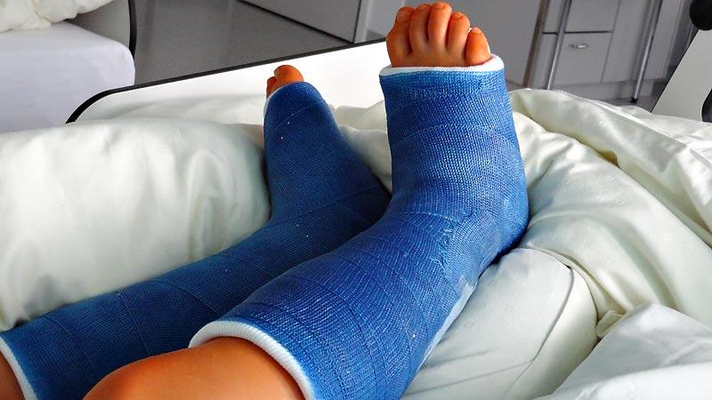 Eingegipste orange Beine nach der OP
